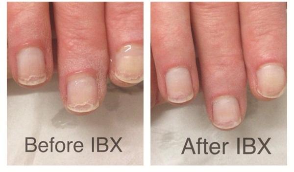 IBX sistemos poveikis nagams